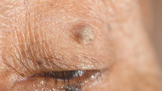 Doctor Shares Everything You Need to Know About Skin Tags - Video
