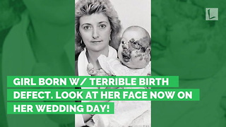 Girl Born w/ Terrible Birth Defect. Look at Her Face Now on Her Wedding Day! - Video