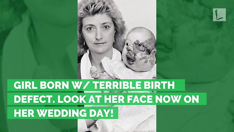 Girl Born w/ Terrible Birth Defect. Look at Her Face Now on Her Wedding Day!