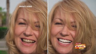 Most Advanced Whitening System