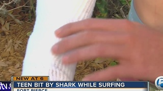 Teen bit by shark while surfing - Video