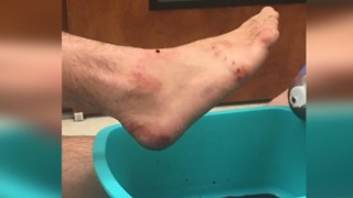 Lifeguard gets bitten by shark in Lantana Beach - Video