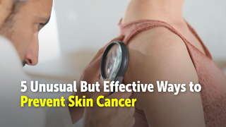 5 Ways to Prevent Skin Cancer