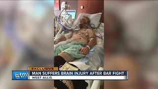 West Allis man clings to life after bar fight - Video