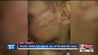 Man accused of beating child for opening present - Video
