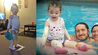 Little girl whose skin tears off called 'real life mummy' because she needs to be covered in bandages to survive - Video