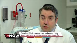 First of its kind study by Cleveland Clinic highlights importance of early melanoma treatment - Video