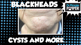 Blackheads, Milia, Inflamed Cyst & MORE! - Video