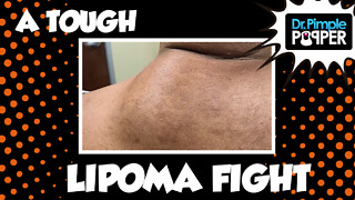 I Fought the Lipoma...the Lipoma Almost Won...