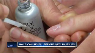 Doctors warn to check your nails for dangerous skin cancer