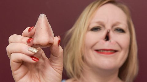 Mum whose nose was eaten by rare disease opens up about new magnetic prosthetic