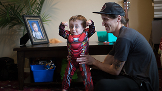 Our Superhero Son Whose Bones Break Like 'Glass' | BORN DIFFERENT - Video