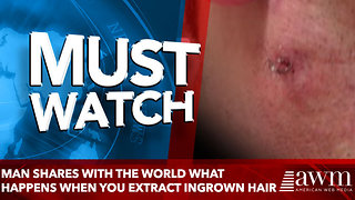Man Shares With The World What Happens When You Extract A Massive Ingrown Hair - Video