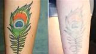 Serious About Removing Your Tattoo?  - Video