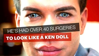 "He's Had 40 Surgeries To Look Like A Ken Doll, But After Taking A Vacation He Says ""Never Again"" - Video"