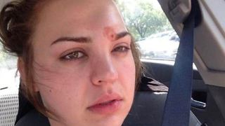 The Disastrous Results of this Young Woman's Popped Pimple - Video