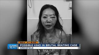 Possible lead in brutal beating case - Video