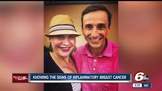 Inflammatory breast cancer may not show up in routine mammograms - Video