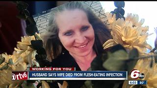 Indy woman dies two months after getting flesh-eating bacteria while vacationing in Florida - Video