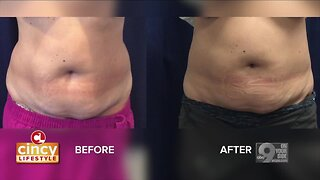 Learning More About CoolSculpting