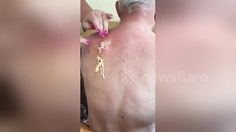 Stomach-churning moment 25-year-old cyst is popped