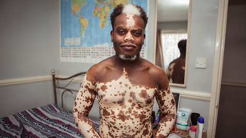 His Vitiligo Is Disappearing, But He Doesn't Want It To