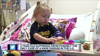 Metro Detroit family fears 2-year-old with very rare disease will never have