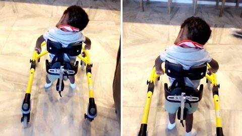 Heartwarming moment baby boy with Hydrocephalus walks for the first time