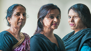 Make Love Not Scars: Acid Attack Survivors Get A Second Chance - Video