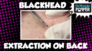 Blackhead extractions on the back, plus... - Video