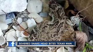 Man almost dies after bitten by severed head of a rattlesnake - Video
