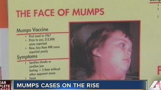 Mumps cases on the rise - Video