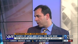 Acute flaccid myelitis on the rise, have your questions answered live by a doctor