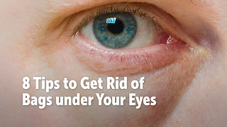 8 Tips to Get Rid of Bags under Your Eyes - Video