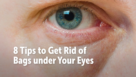 8 Tips to Get Rid of Bags under Your Eyes