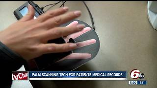 Palm scanning tech for patients' medical records - Video