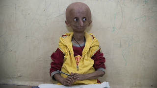 Teen With Progeria Ageing Syndrome Celebrates Milestone 15th Birthday - Video