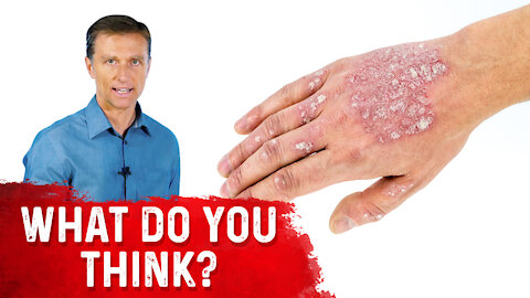 Is Psoriasis Contagious?