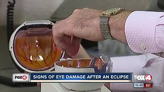 Signs of eye damage after an eclipse - Video