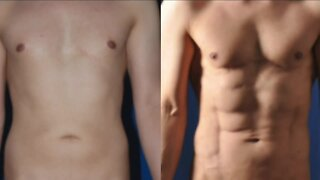 Advanced Body Sculpting Institute // Modern Liposuction Technology Put To Work!