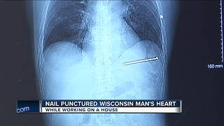 Doctor says nail punctured Wisconsin man's heart - Video
