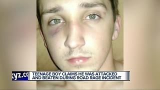 Teenage boy claims he was attacked and beaten during road rage incident - Video