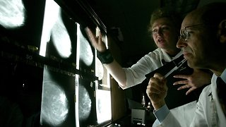 Genetic Breast Cancer Testing Guidelines May Lead To Missed Cases