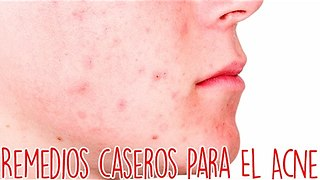 Remedios Caseros Para El Acne - Video