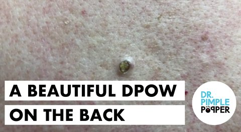 An Easy Peasy Dilated Pore of Winer