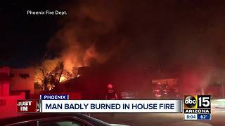 Man badly burned in Phoenix house fire - Video