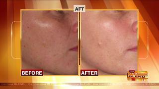 Different Options to Unmask Beautiful Skin - Video