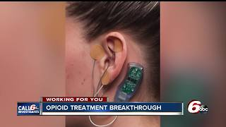 Device to reduce opioid withdrawal symptoms approved by FDA