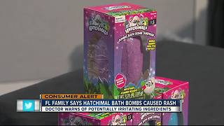 Florida family says daughter broke out in rash after using Hatchimal Bath Bomb - Video