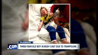 Three-year-old boy injured due to trampoline-related injury - Video